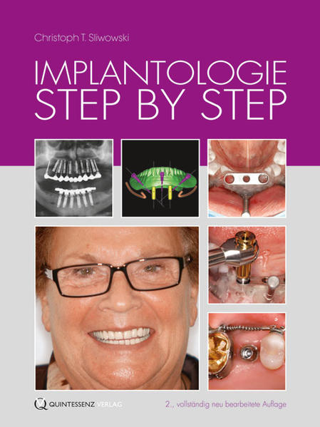 Implantologie Step by Step - Coverbild