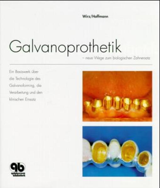Galvanoprothetik - Coverbild