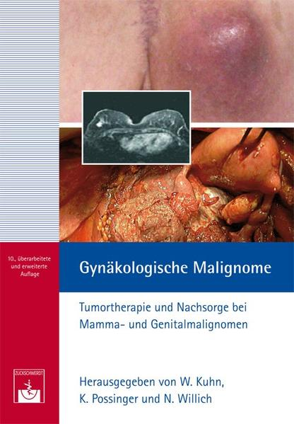 Gynäkologische Malignome - Coverbild