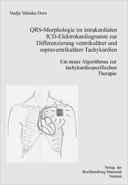QRS-Morphologie im intrakardialen ICD-Elektrokardiogramm zur Differenzierung supraventrikulärer von ventrikulären Tachykardien - Coverbild