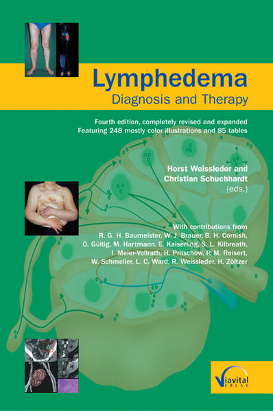 Lymphedema - Diagnosis and Therapy - Coverbild
