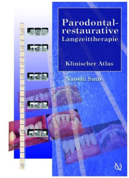 Parodontal-restaurative Langzeittherapie - Coverbild