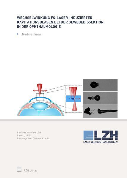 Wechselwirkung fs-Laser-induzierter Kavitationsblasen bei der Gewebedissektion in der Ophthalmologie - Coverbild