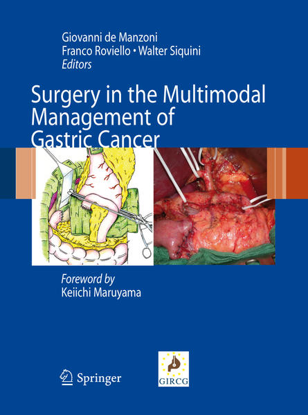 Surgery in the Multimodal Management of Gastric Cancer - Coverbild