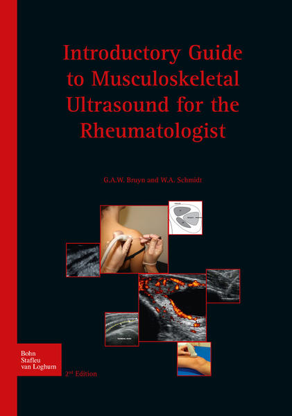 Introductory guide to musculoskeletal ultrasound for the rheumatologist - Coverbild
