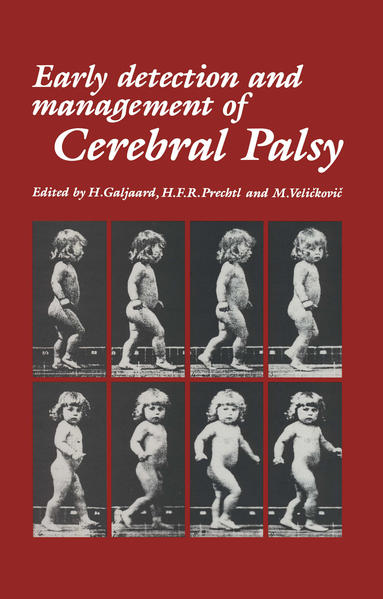 Early Detection and Management of Cerebral Palsy - Coverbild